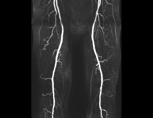 MVZ Westpfalz Radiologie Becken-Bein-Arterien